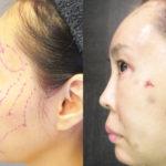 脂肪幹細胞注入(SRF注入)1回目手術後当日夜:腫れ・痛み・内出血など