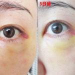 脂肪幹細胞注入(SRF注入)体験記1回目注入後5日目ダウンタイム:内出血が黄色に